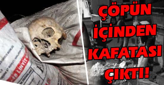 Çöp Konteynerinde Kafatası Bulundu!