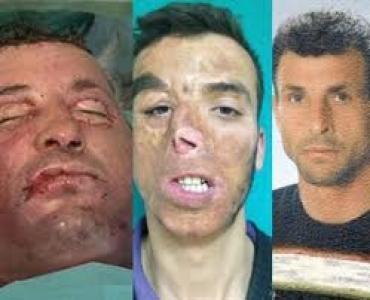 Türkiye'nin ilk Yüz Nakli Yapılan Uğur Acar ın Fotoğrafları. Uğur Acar Eski Yüzü ve Yeni Yüzü...